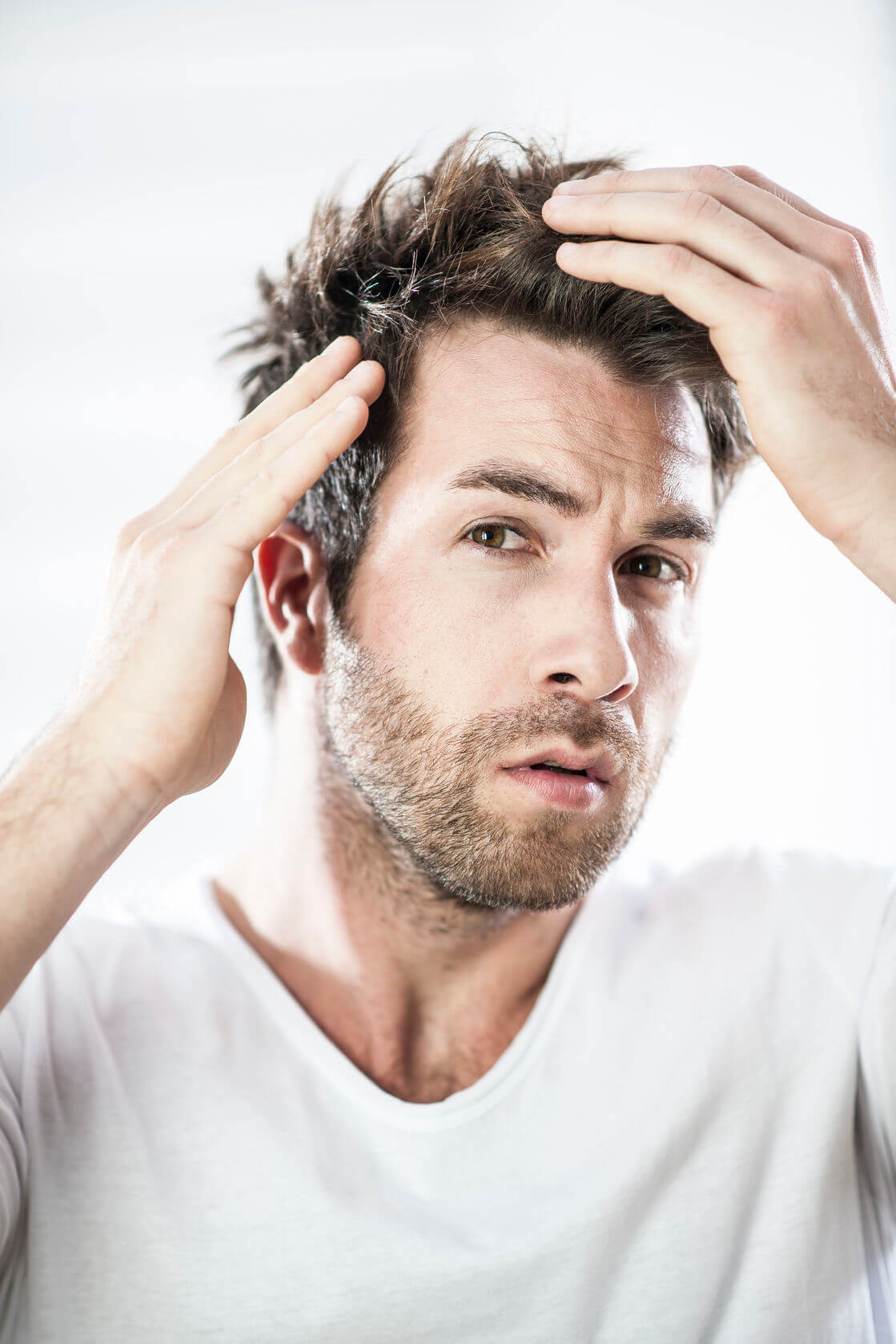 Haarausfall vermehrt sich bei Männern die Rauchen.