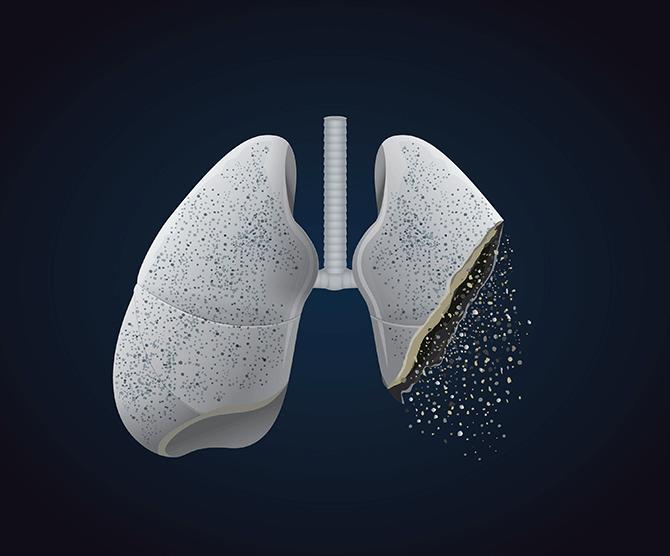 Eine Lunge die Schäden durch das Rauchen zeigt