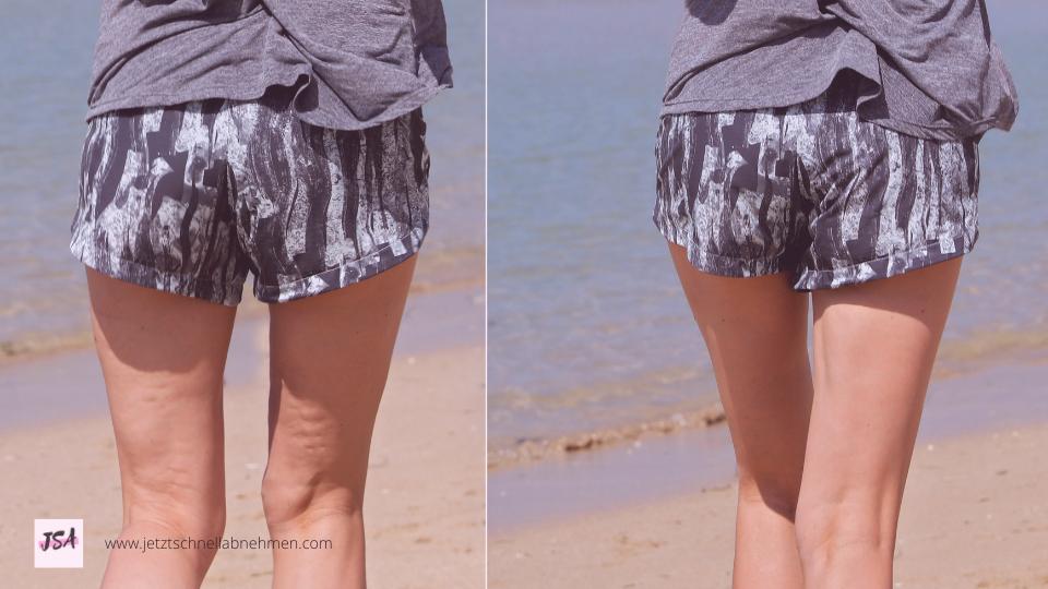 Frau mit Cellulite am Bein, vorher-nachher
