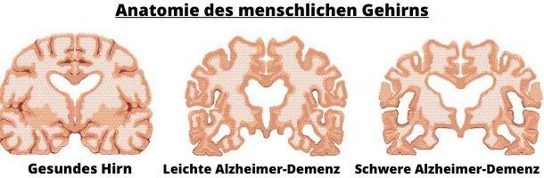 Alzheimer Verlauf Gehirn