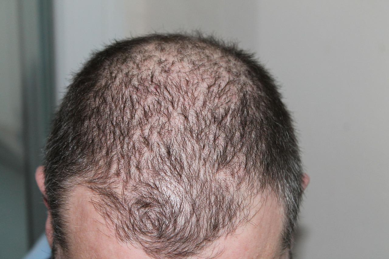 Man mit Haarausfall am Kopf