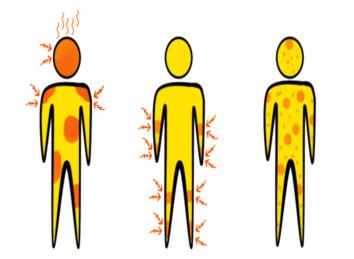 Symptome der Hämorrhoiden