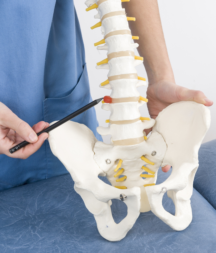 Arzt veranschaulicht bandscheibenvorfall als erkrankung der Wirbelsäule