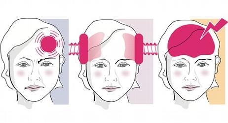 Kopfschmerzen VS Migräne - Die Unterschiede
