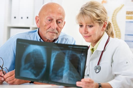 Mann schaut sich mit Ärztin das Röntgenbild einer Raucherlunge an