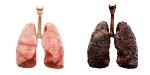 Eine gesunde Lunge und eine Raucherlunge