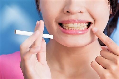 Frau raucht Zigarette und bekommt gelbe Zähne