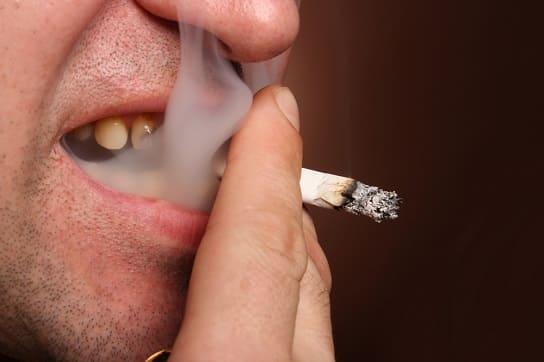 Raucherzähne eines rauchenden Mannes sind zu sehen