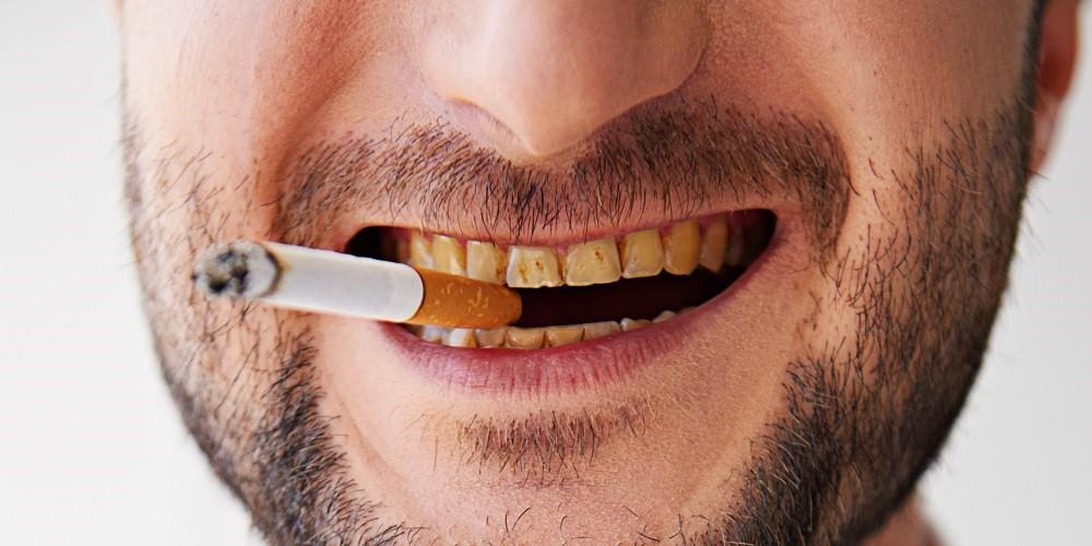 Gelbe Zähne sind während des Rauchens zu sehen