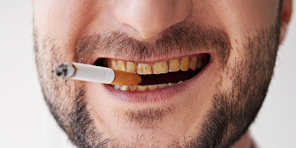Raucherzähne - Wie du sie effektiv aufhellen kannst