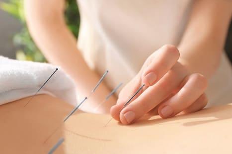 Frau unterzieht sich einer Akupunktur Therapie