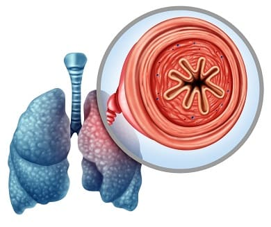 Aufklärendes Bild, was die Verengung der Atemwege veranschaulicht