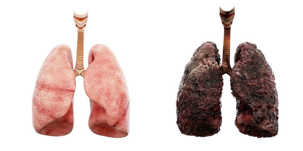 Auf dem Bild ist eine gesunde Lunge und eine ungesunde, schwärzliche Raucherlunge zu sehen