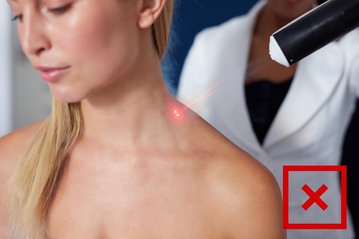 Doppelkinn Laser-Behandlung