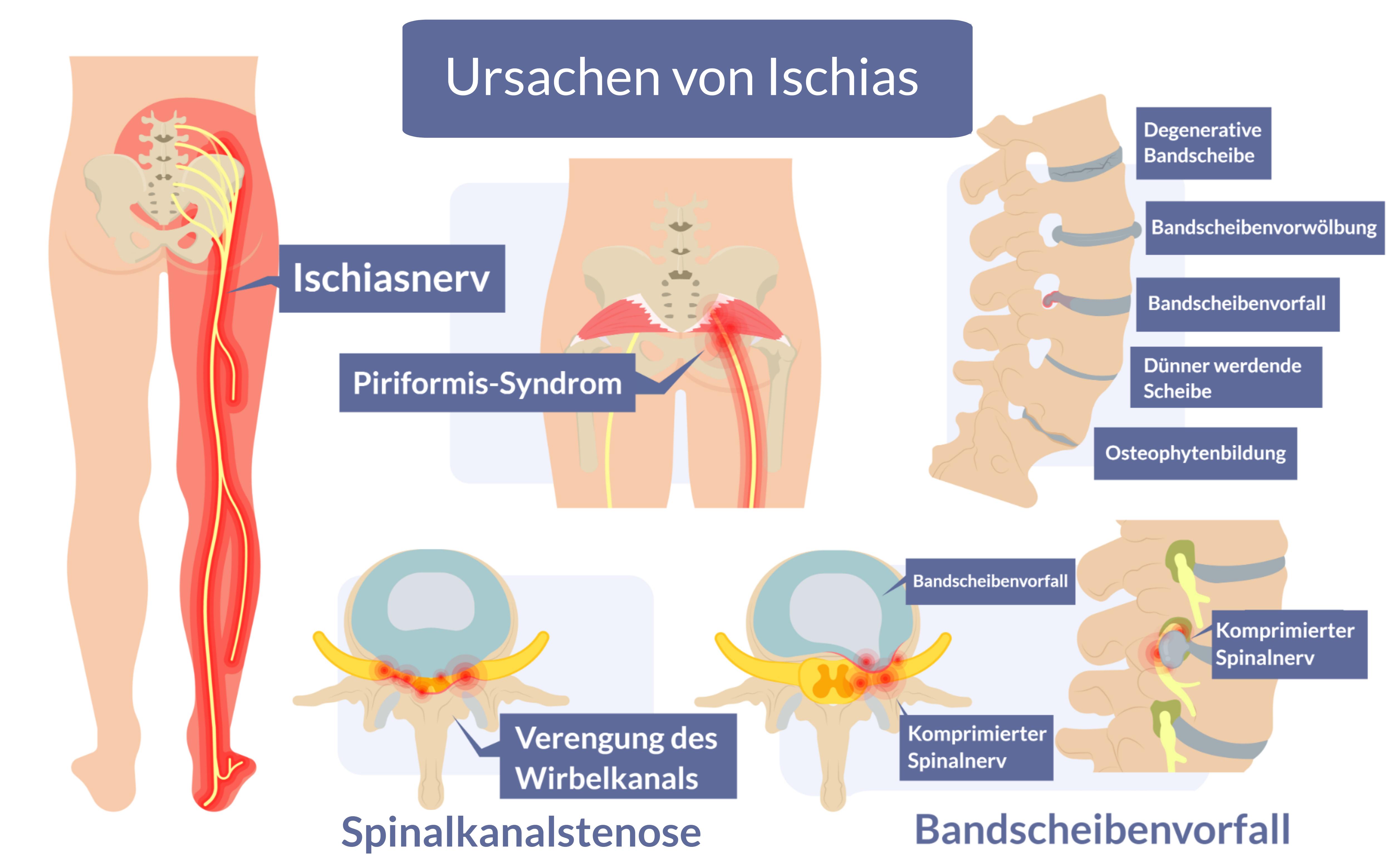 Aufgeführte Erkrankungen des Nervensystems, die Rückenschmerzen, Hüften und Bein hervorrufen, die durch eine Wirbelkrankheit verursacht werden