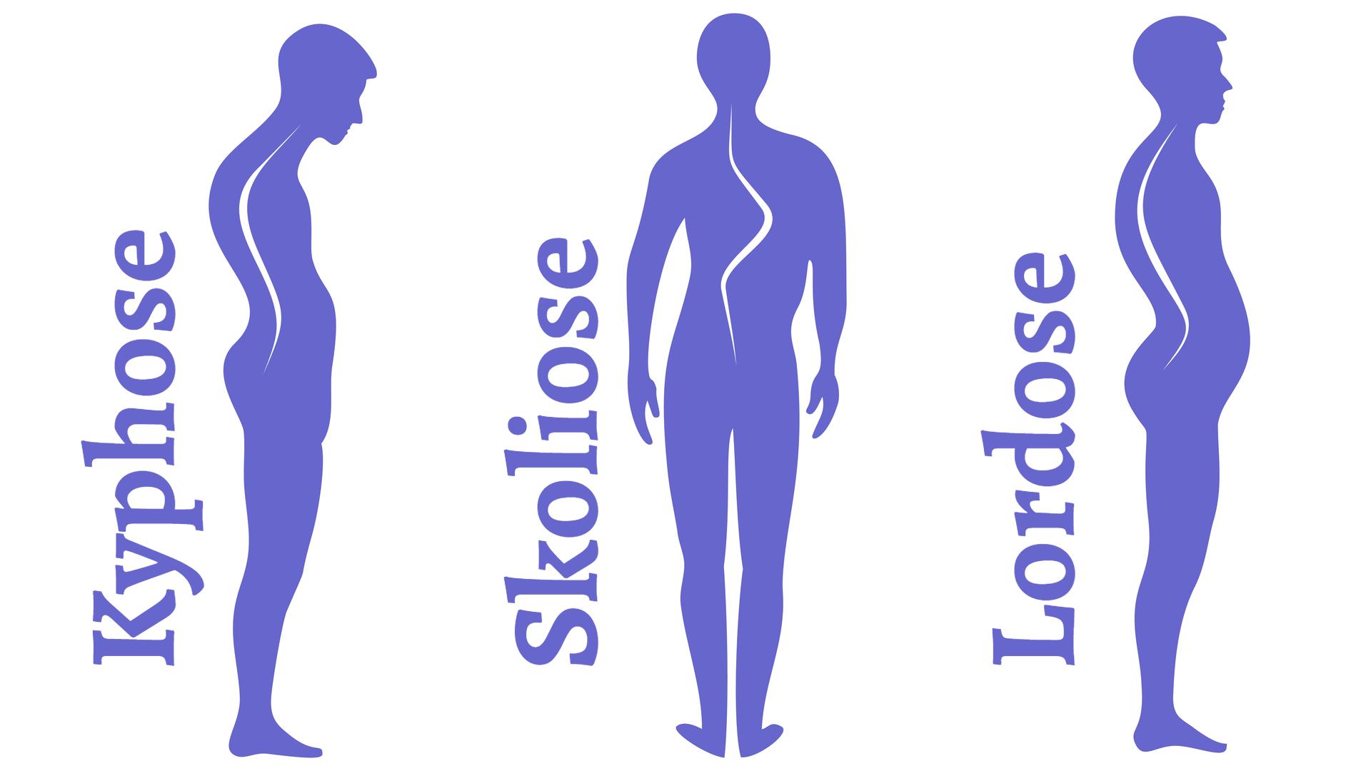 Erkrankungen der Wirbelsäule. Skoliose, Lordose und Kyphose. Körperhaltungsfehler. Menschliche Silhouetten einzeln auf Weiß, Vektorgrafik.