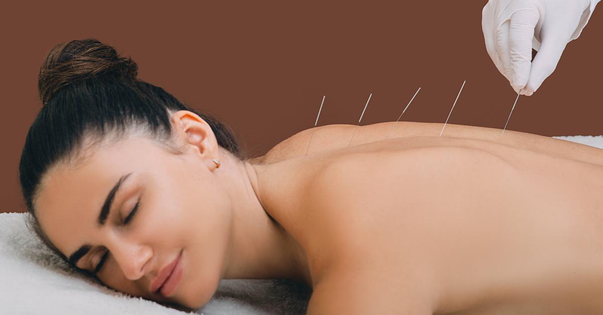 Therapeut mit Akupunkturnadeln. Akupunkturbehandlung von chronischen Rückenschmerzen einer Frau