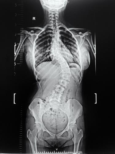 Eine Röntgenaufnahme der ganzen Wirbelsäule mit aller Teile, einschließlich der Halswirbelsäule, des Brustraums und der Lendenwirbelsäule