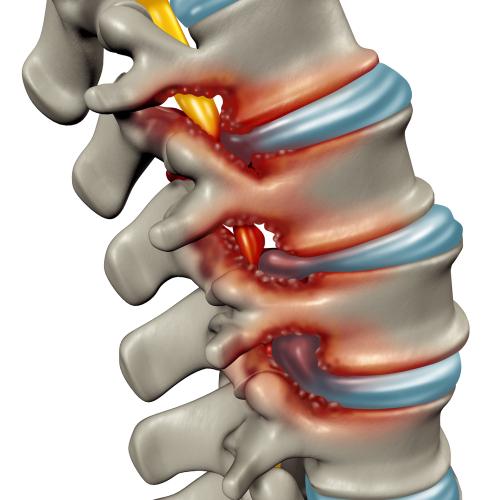 Spinalstenosen als degenerative Erkrankung der menschlichen Wirbelsäule, die komprimierte Wirbelsäulennerven hervorruft, ist ein medizinisches Konzept als 3D-Illustration.