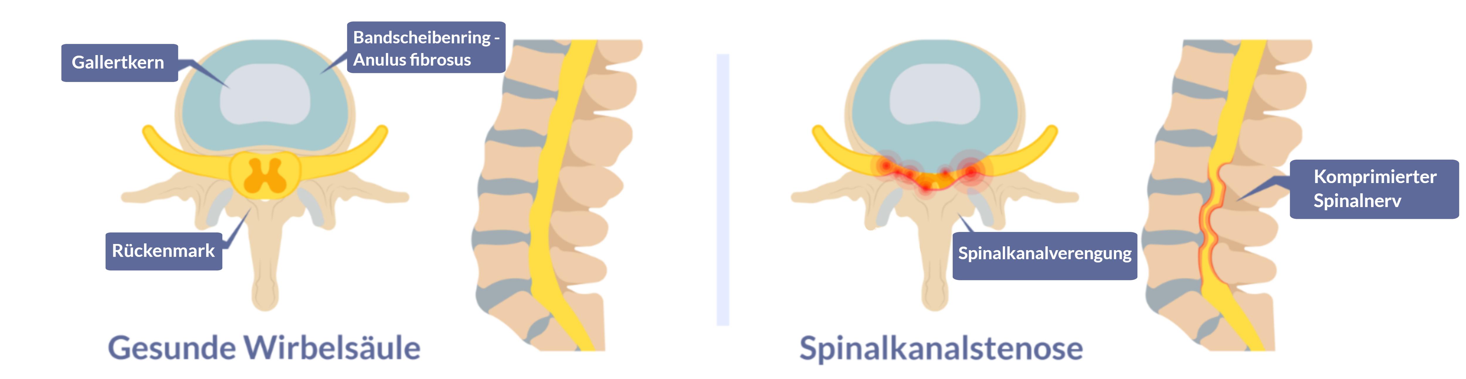 Eine 3D Darstellung mit Spinalstenose eine Verengung der Wirbelsäulenräume, die Schmerzen im unteren Rückenbereich verursacht