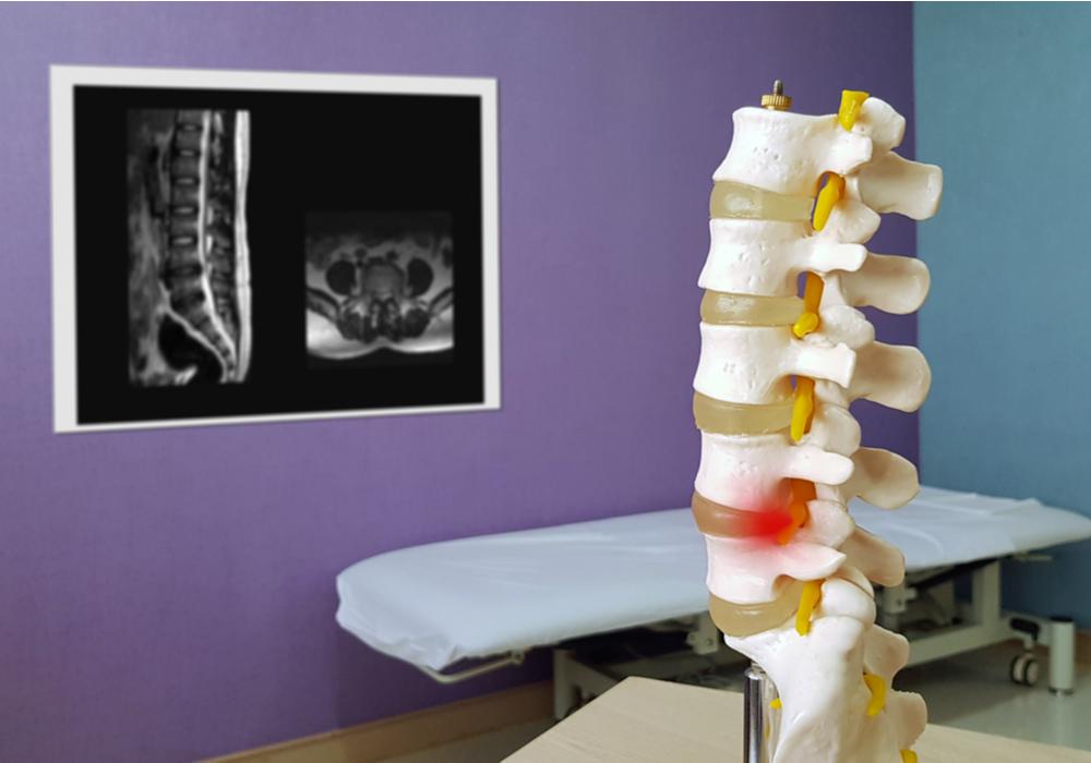 Spinalkanalstenose - Gut behandelbare Rückenschmerzen