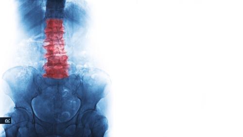 Röntgenbild des Patienten zeigt eine entzündliche Morbus Bechterew-Krankheit, die degenerative Veränderungen der menschlichen Wirbelsäule und der Beckenknochen sowie eine Verdichtungsfraktur an der roten Markierung aufweist.