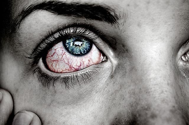 Tränendes rotes Auge bei Cluster Kopfschmerzen