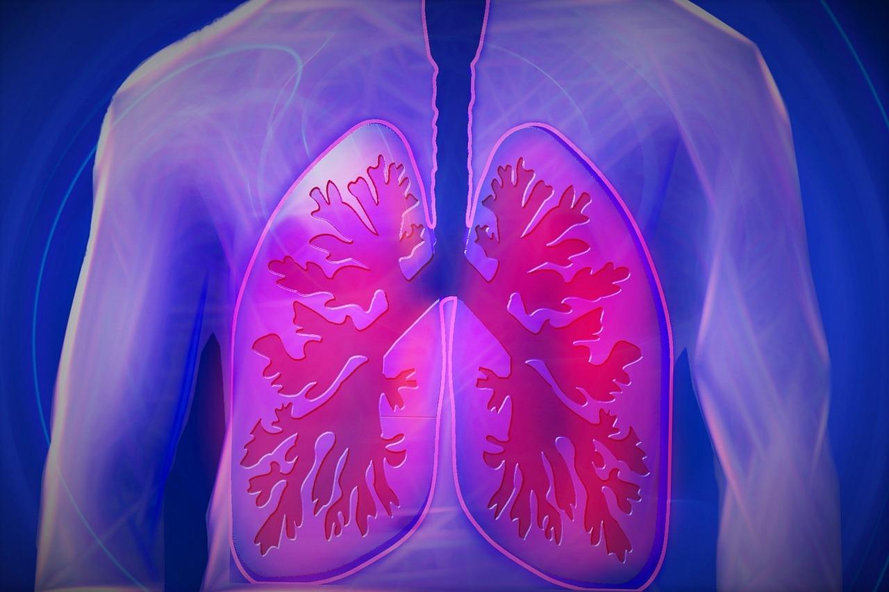 Lungenkrebs: Bild einer erkrankten Lunge