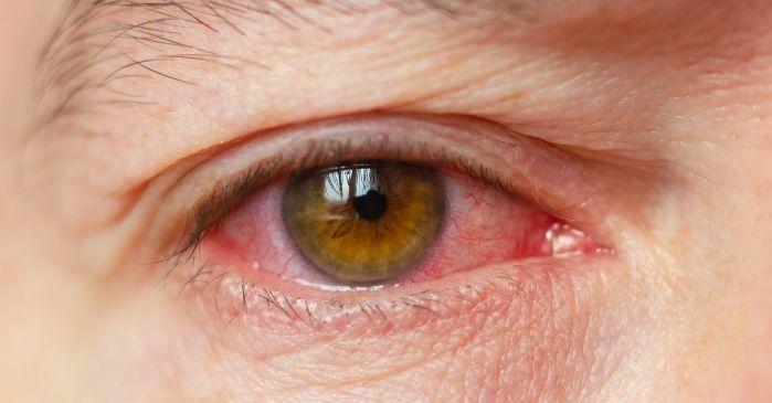 Trockene Augen Symptome Rötung Brennen Juckreiz
