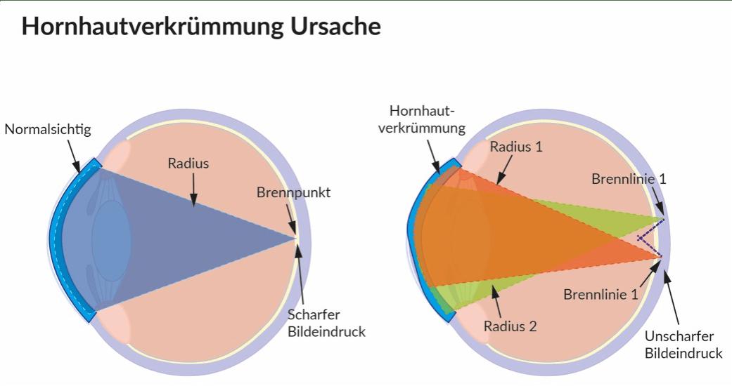 Bei der Hornhautverkrümmung bricht die Hornhaut (Kornea) die Lichtstrahlen, wodurch ein unscharfes Bild entsteht