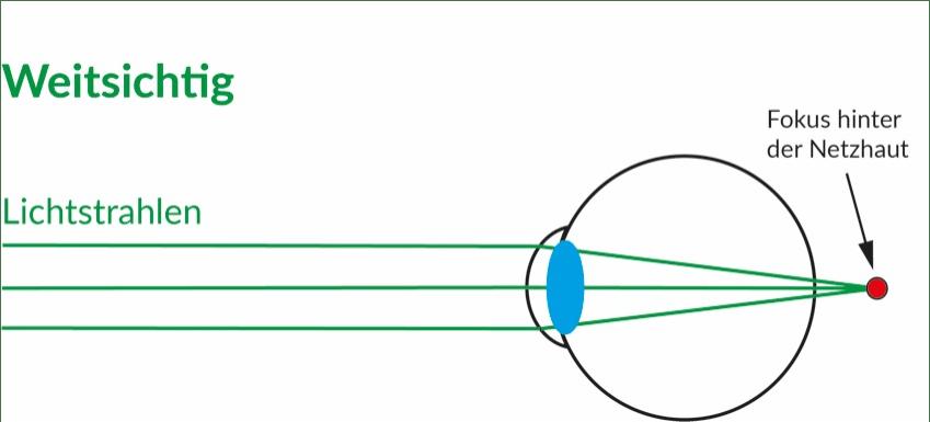 Bei der Weitsichtigkeit brechen die Lichtstrahlen nach der Netzhaut. Die Bilder werden hinter der Netzhaut fokussiert