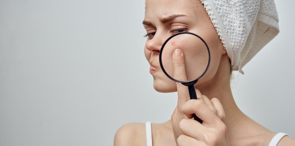Junge Frau hat unterirdischen Pickel im Gesicht untersucht mit Lupe