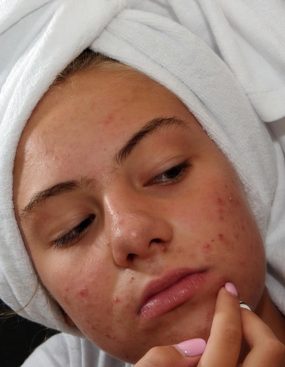 Junge Frau mit Handtuch auf dem Kopf ist unglücklich wegen Pickel Narben im Gesicht