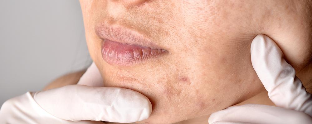 Dermatologe untersucht Gesicht Frau mit Pickel Narben