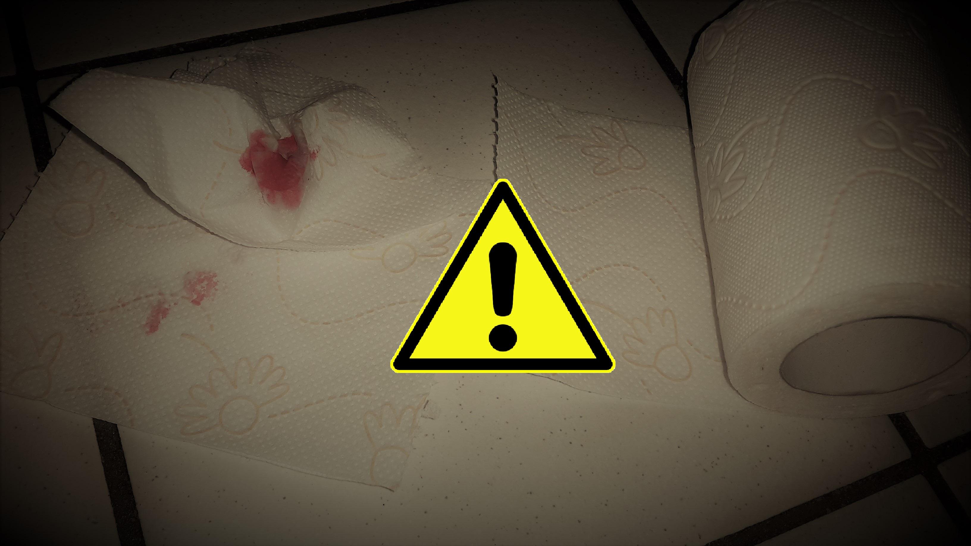 Hämorrhoiden Bluten 7 Tipps Um Die Blutung Im Stuhl Zu Stoppen