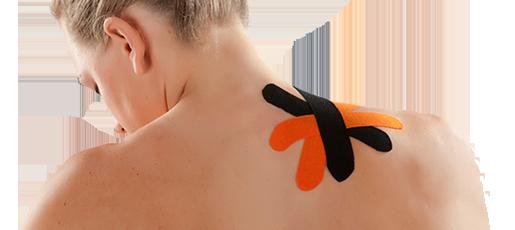 Kinesiology Taping kann unter anderem zur Behandlung von <a href=